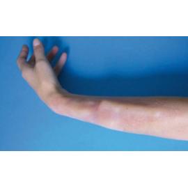 Prothèse Fracture Avant Bras ou Tibia ou Clavicule