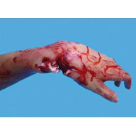 Fracture Ouverte du Poignet