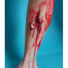 Fracture Ouverte du Tibia
