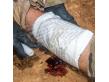 Combat Medical Systems Battle Bandage